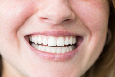 Gesunde, schöne Zähne
